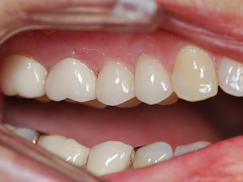 metallfreier Zahnersatz aus Zirkon: Zahnarzt Muenchen Dres